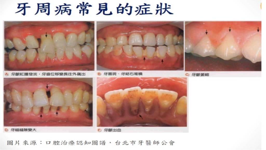 牙周病常見的症狀